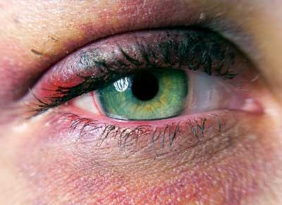 کبودی زیر چشم و روش های درمان