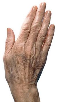 پیری پوست و علل این مشکل