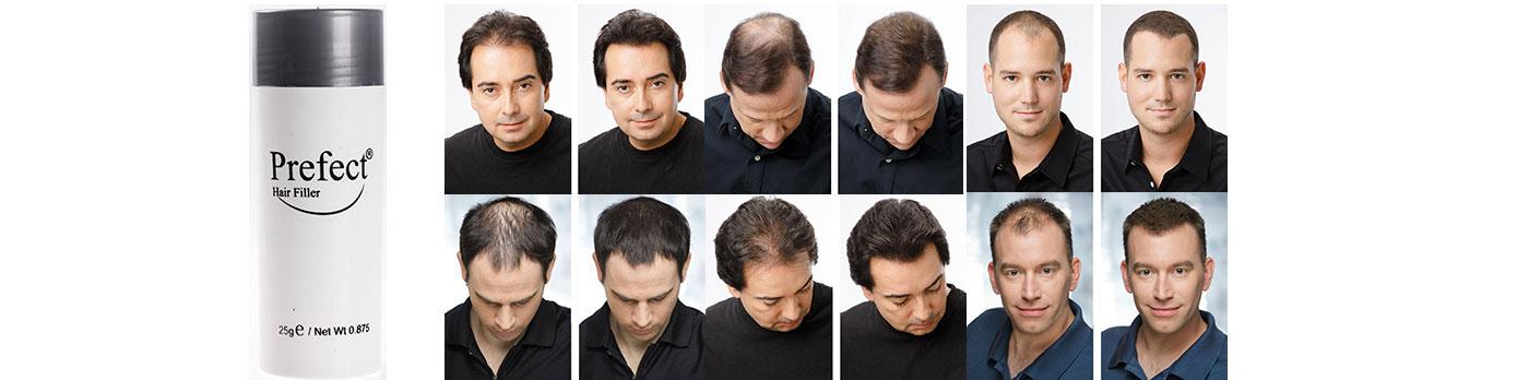 خرید پودر پرپشت کننده موی سر پرفکت